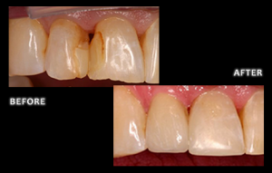 Stained Fillings