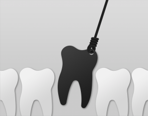extractions-wisdom-teeth-simcoedental