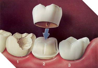 Dental Crown - Damaged tooth - Simcoe Dental Group