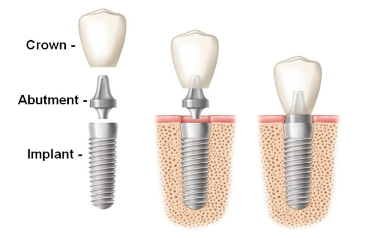 Dental Implant - Replacing Teeth - Missing Tooth - Simcoe Dental Group
