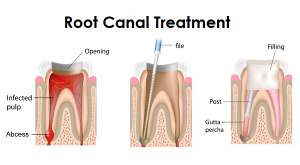 Root Canal Treatment - Simcoe Dental Group - Dentist Toronto