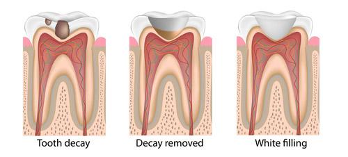 White filling - Simcoe Dental Group - Dentist Toronto