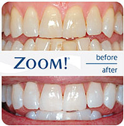 ZOOM teeth whitening - Simcoe Dental Group - Dentist Toronto