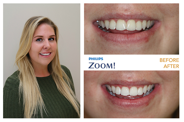 Zoom Teeth Whitening - Simcoe Dental Group