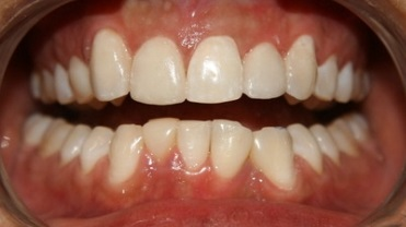 Replacement of stained bonded restorations. AFTER: Teeth whitening and replacement with new bonded fillings enhanced the natural appearance of the smile.