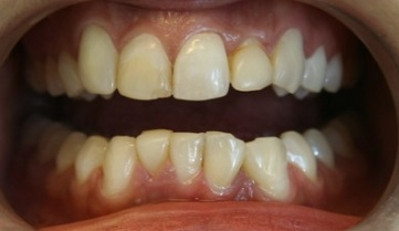 Replacement of stained bonded restorations. BEFORE: Patient was unhappy with stained dark fillings and wished to improve the overall appearance of the front teeth.