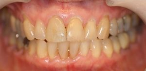 AFTER: Replacement crown on front tooth matching the size, shape and colour of the natural teeth.