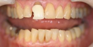 BEFORE: Patient was unhappy with the chipped front crown. They also wished to have a more natural appearance that blended with surrounding teeth.