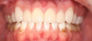 AFTER: Porcelain veneers were used to cover and disguise the severely stained upper teeth. The result is white, polished even looking teeth.