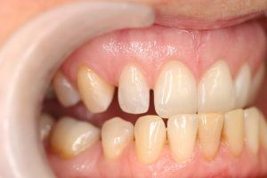 BEFORE: This patient has smaller lateral incisors, commonly known as peg laterals. They wished to fill the gaps between their teeth to improve their confidence when smiling.
